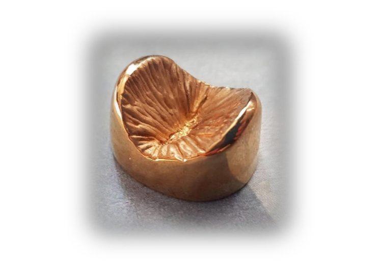 Anus en bronze