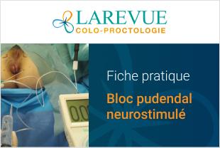 Fiche pratique : Bloc pudendal neurostimulé